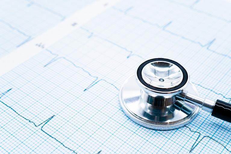 不整脈はどうやって診断するの?